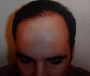 The leading Fue Hair Transplantation UK
