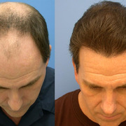 Enjoy Savings With Hair Transplant Surgery UK
