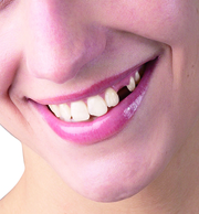 Get your Comfort Smile Back with Hungary Dental Implant