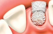 Encourage your surrounding Bone before Dental Implant | Bone Grafting