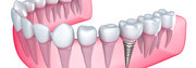 Tooth Implant in London | Hungary Dental Implant