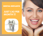 Avail Dental Implant from Just £42 per Month