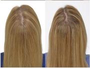 Innovative IGrow Hair Thinning Treatment System