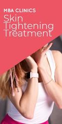 Trustworthy Skin Tightening Treatment
