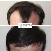 Hair Transplant in London | Fortes clinc