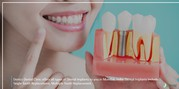 Why you need to get dental implants in India